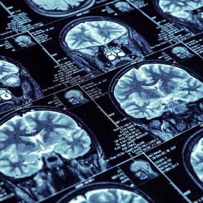 Descubren la cura para una forma de epilepsia