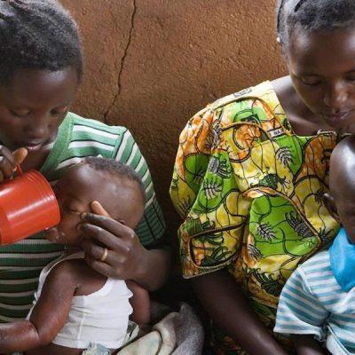 Covid-19: 6,7 millones más de menores de 5 años con desnutrición aguda