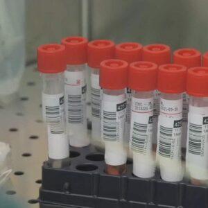 Cardenal Turkson: «Patentes de medicinas dificultan la difusión de las vacunas»