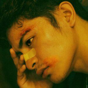 Vivir con heridas